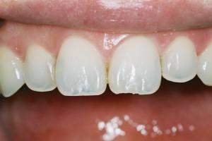 歯科用マイクロスコープ(顕微鏡)治療で行う「 審美歯科治療 」とは? !