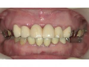 「インプラント治療」と「かみ合わせ治療」と「セラミック審美歯科治療」とは?!